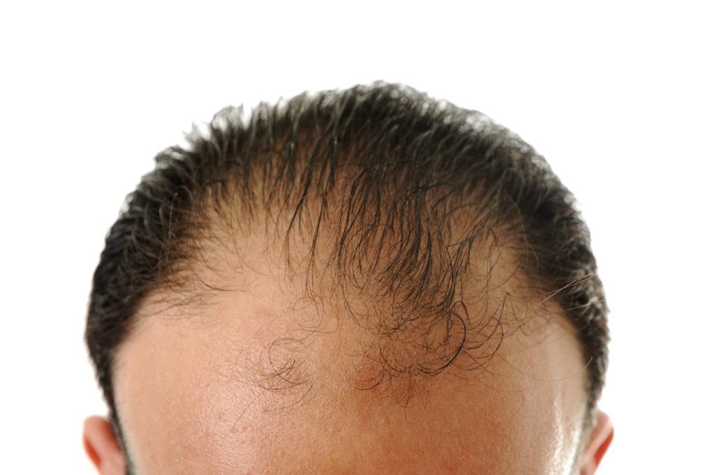 implanty włosów